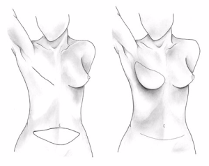 Types of Breast Reconstruction: DIEP Flap