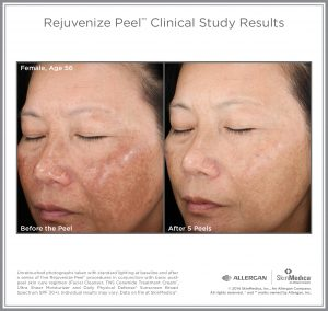 Rejuvenize Chemical Peel Before and After