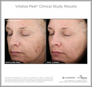 Vitalize Chemical Peel Before and After